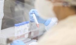 Paraná é o segundo estado que mais realiza exames RT-PCR