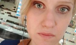 Ela teve doença causada por lente: